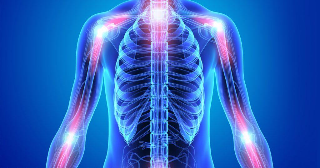 inflamasi terjadi dalam tubuh