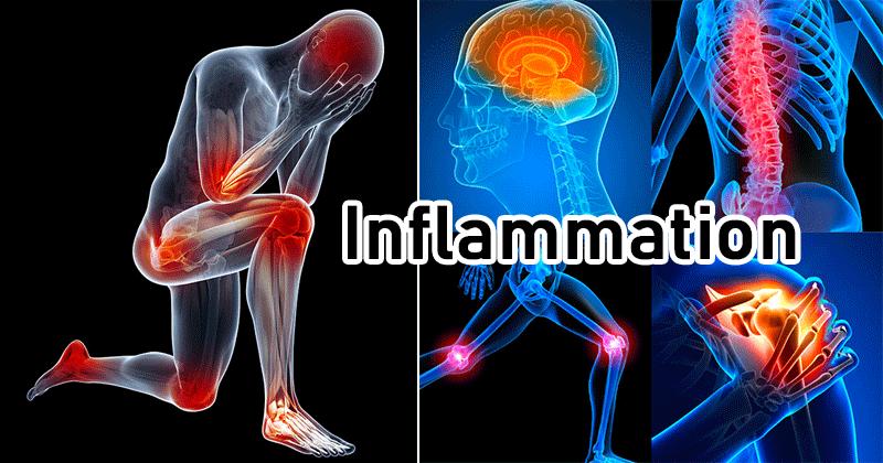 inflamasi dan zat anti infalamasi